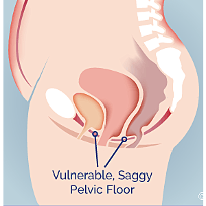 What Is Pelvic Organ Prolapse? Your Essential Guide