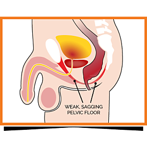 5 Factors Giving You a Weak Pelvic Floor