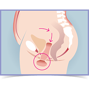 5 Top Tips to Treat & Prevent Prolapse