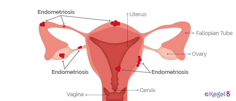 What Endometriosis Looks Like Kegel8