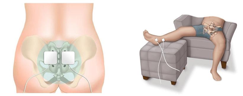 Sacral Nerve Stimulation and Tibial Nerve Stimulation