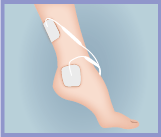 Ankle Electrode Pads