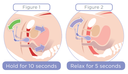 Kegel8 Pelvic Floor Wand Exercise Diagram