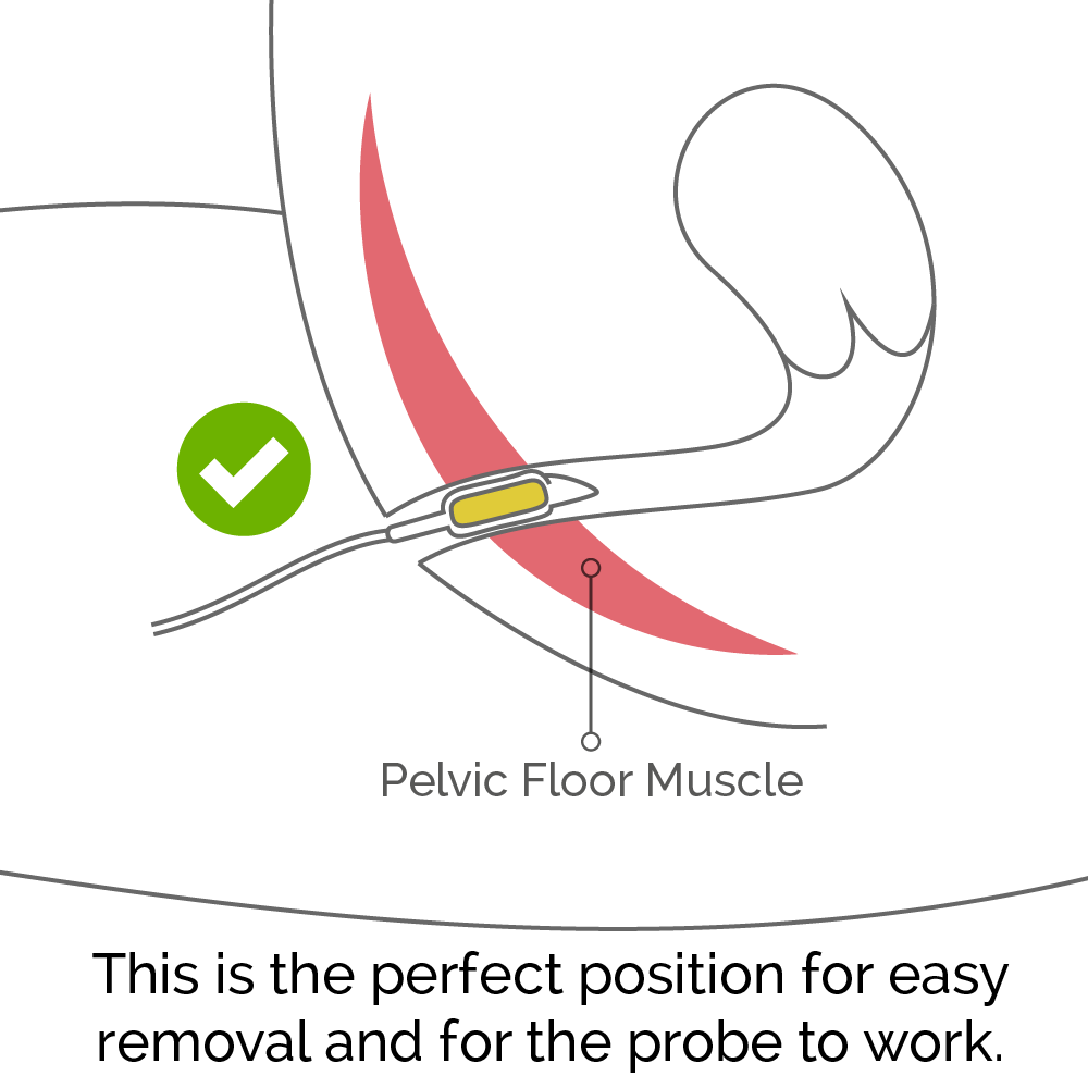 The perfect position of the probe in the body