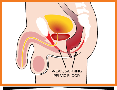 Kegel8 Weak Male Pelvic Floor