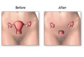 Prevent Incontinence & Prolapse After Hysterectomy With A Kegel8 Pelvic Toner