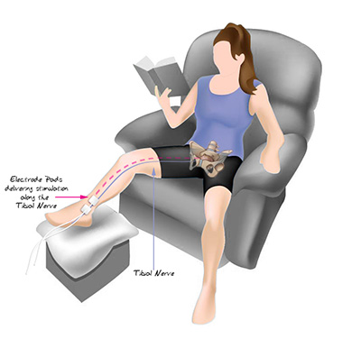 Tibial Nerve Stimulation Help Amp Advice Kegel8
