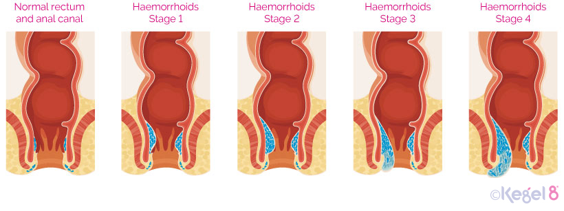 The Stages of Haemorrhoids