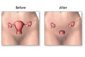 Hysterectomy Before and After