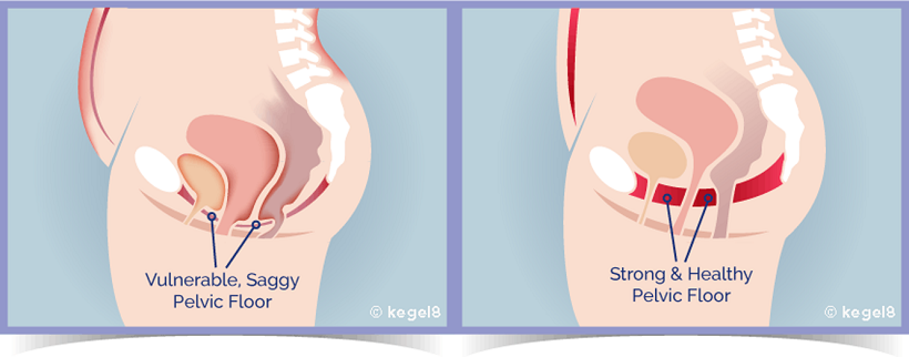 Strong vs Weak Female Pelvic Floor