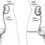 Neobladder Surgery - The Importance of Kegel Exercise