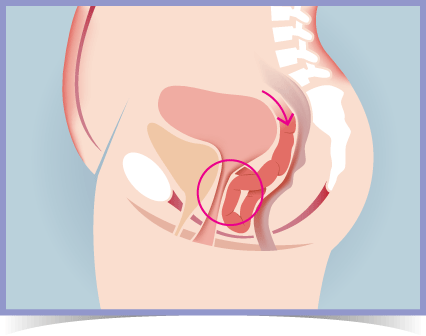 Enterocele Prolapse Diagram