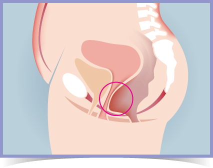 Rectocele Prolapse Diagram