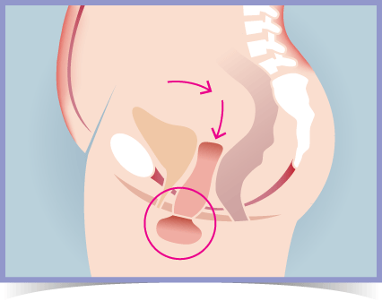 Womb / Uterine Prolapse - Phase 2 Prolapse Diagram
