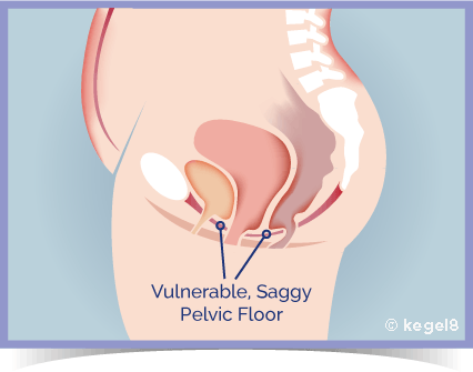 Kegel8 - A Weak Pelvic Floor