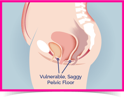 Weak pelvic floor muscles - Kegel8 can help